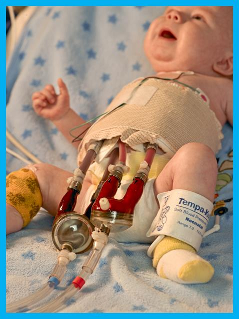 Pediatric Cardiac Intensive Care Unit » Nursing At Uf Health